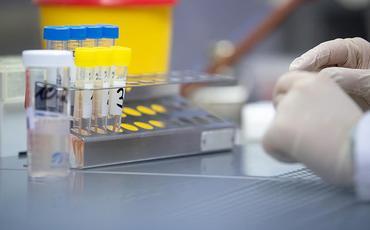 ÜST: hazırda 17 koronavirus peyvəndi klinik sınaqdadır