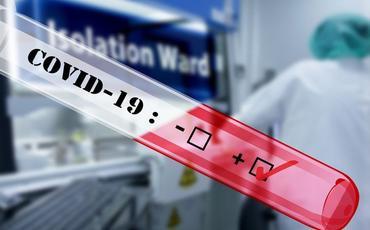 Almaniyada son sutkada 859 nəfər koronavirusdan ölüb