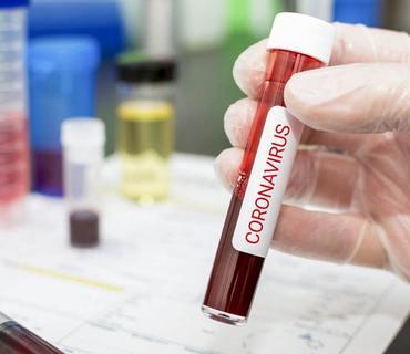 Azərbaycanda indiyədək 1041184 koronavirus testi aparılıb