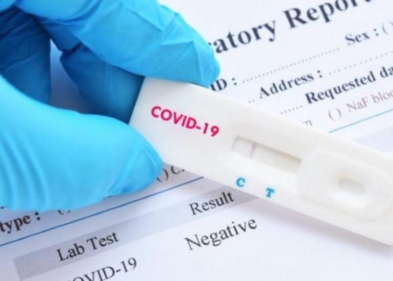 Almaniya şirkəti Azərbaycana koronavirus testləri ixrac etmək niyyətindədir