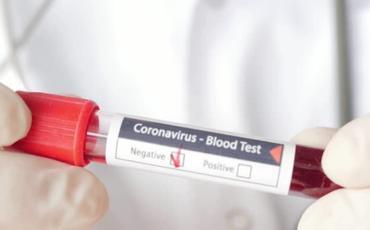 Həkim səhvi 19 futbolçunun koronavirusa yoluxmasına səbəb oldu