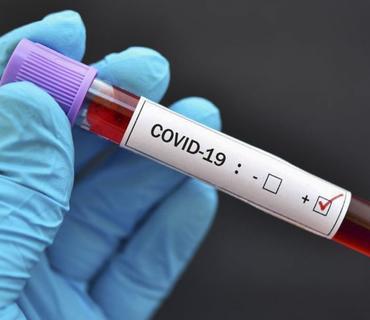 İranda ötən sutka 322 nəfər koronavirusdan ölüb