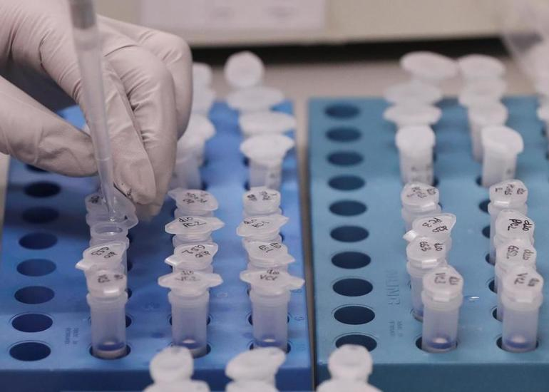 ÜST: Dünyada koronavirusa yoluxanların sayı 496 mindən çox artıb