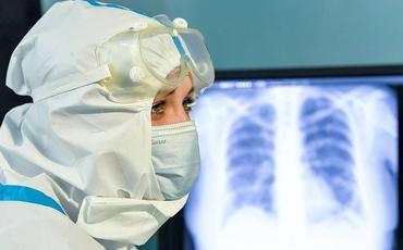 Rusiyada koronavirusdan ölənlərin sayı 107 mini ötüb