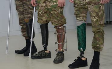 Qazilərin protez üçün xaricə getməsinə ehtiyac yoxdur - Departament direktoru